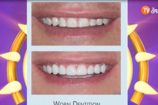 صباح الشروق|طبيب الأسنان الحاج يوسف… هكذا تحافظون على اسنانكم وهذه حالات زرعها…