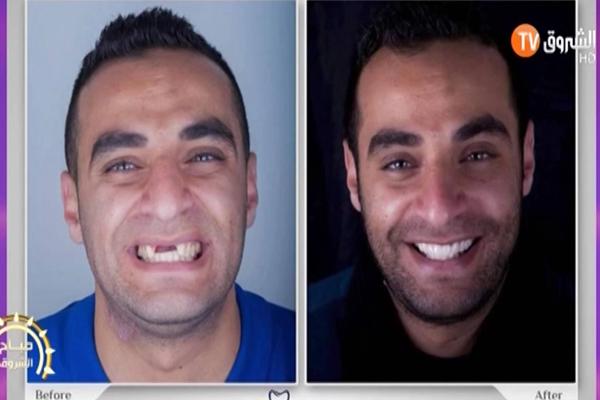 أسباب اصفرار الأسنان وكيفية تبييض الأسنان!